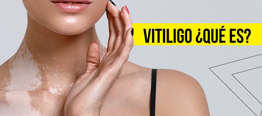 Vitiligo qué es