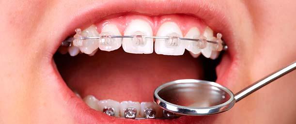 ¿Qué es Ortodoncia?